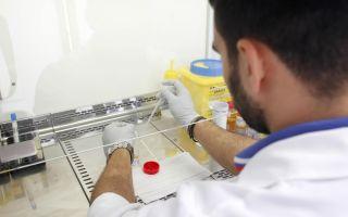 Чем отличается общий анализ крови от биохимического?