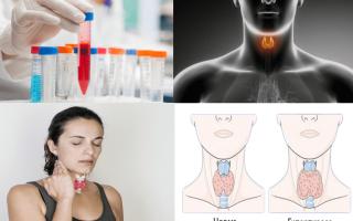 Онкомаркеры рака щитовидной железы