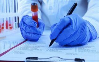 Анализ крови при заболеваниях крови