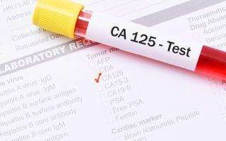 Почему повышен онкомаркер СА-125?