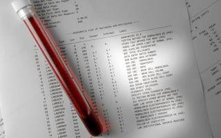 Анализ крови на аллергены у взрослых: расшифровка показателей