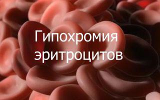 Гипохромия эритроцитов