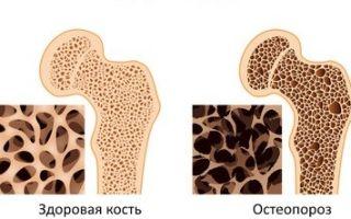 Кальций в организме, не грозит ли вам остеопороз?