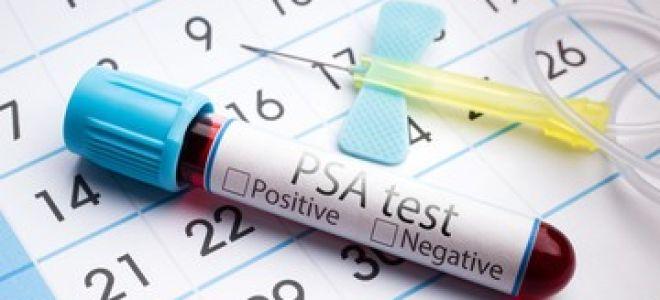 Анализ крови ПСА при онкологии