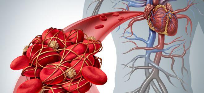 Тромбокрит (pct) в анализе крови: что это? норма, повышен, понижен