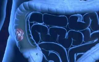 Онкомаркеры кишечника