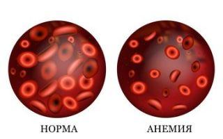Анализ крови при анемии: причины возникновения, определение анемии по анализу крови