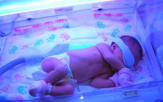 Билирубин в крови у новорожденных: нормы, причины, лечение