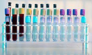 Креатинфосфокиназа (КФК): норма в крови, причины повышения