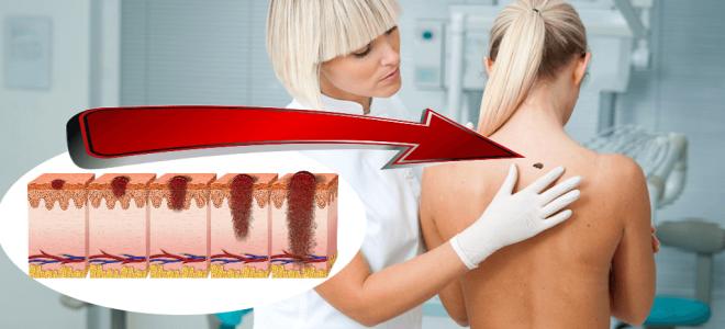 Онкомаркер на рак кожи