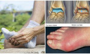 В порядке ли суставы ваших ног?