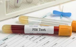 Общий ПСА в анализе крови при простатите