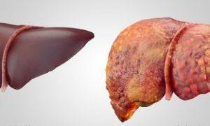 Анализы крови на гепатит: показания и виды