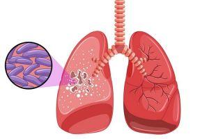 Современная ПЦР-диагностика туберкулеза