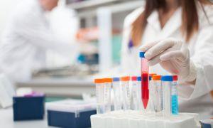 Анализ крови РМП (на микрореакцию)