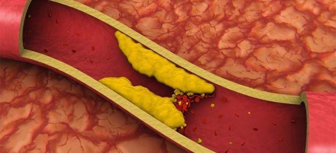 Алкоголь и холестерин в крови