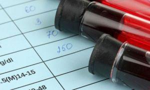 Биохимический анализ крови на мочевую кислоту