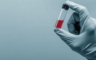 Щелочная фосфатазав крови: норма, повышенная, пониженная в анализе