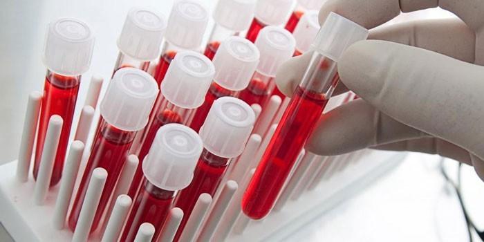 Анализ крови МНО: что это? расшифровка, нормы у женщин и мужчин