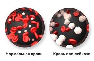 Как определить лейкоз по анализу крови