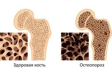 здоровая кость и кость при остеопорозе
