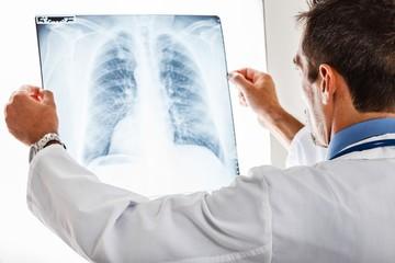Что показывает при пневмонии анализ крови?