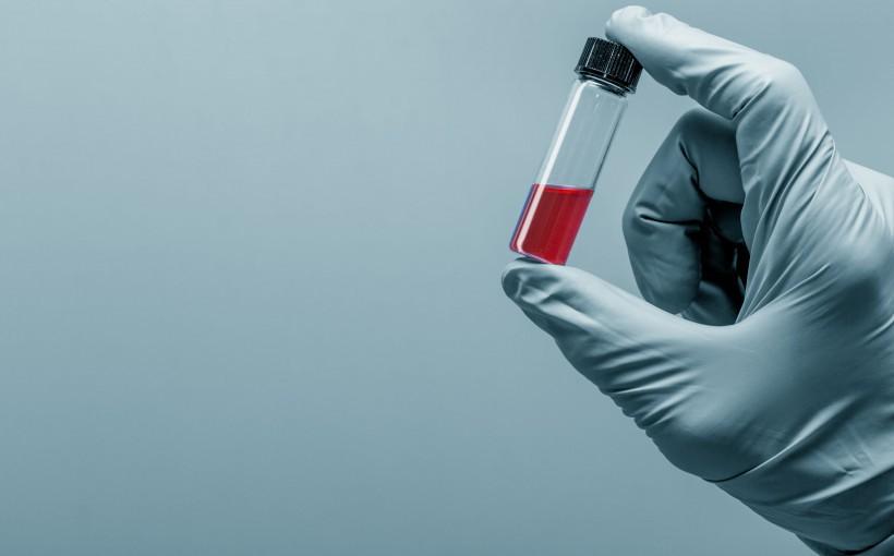 Щелочная фосфатаза в крови: норма, повышенная, пониженная в анализе