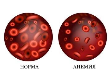 Эритроциты (RBC) в анализе крови