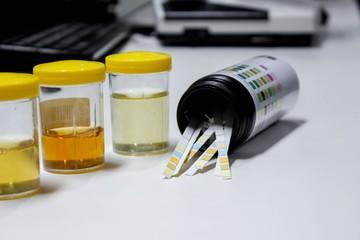 Ph крови человека: понятие и нормы в анализе крови