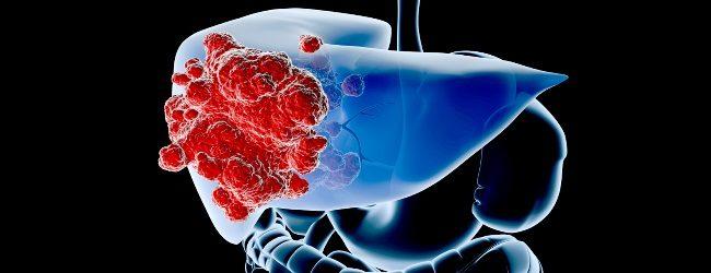 Альфа-фетопротеин (АФП): при беременности и как онкомаркер