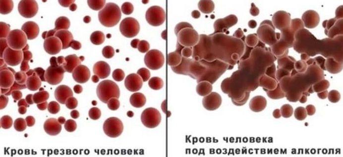 Алкоголь разжижает кровь или сгущает? Как правильно лечить похмельный синдром