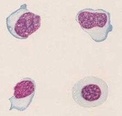 Анализ крови при мононуклеозе у детей: показатели в анализе и симптомы болезни