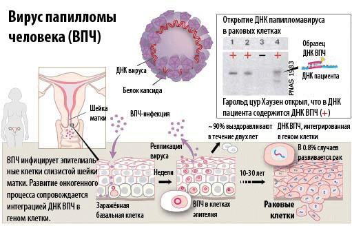 Анализ крови на ВПЧ (вирус папилломы человека): Что такое ВПЧ и способы диагностики