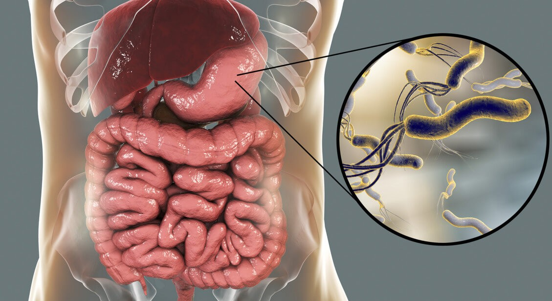 Анализ крови на хеликобактер пилори и другие методы диагностики