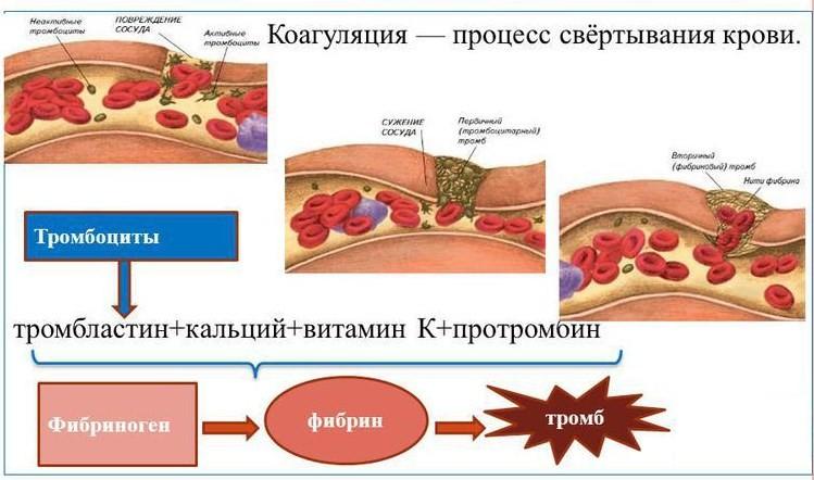 Анализ крови на ПТИ - что это такое?