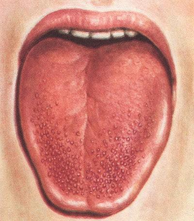 Нехватка витамина В12: симптомы у взрослых