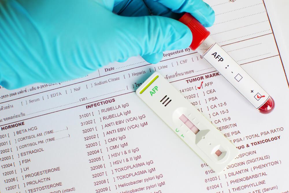 Биохимический анализ крови при беременности