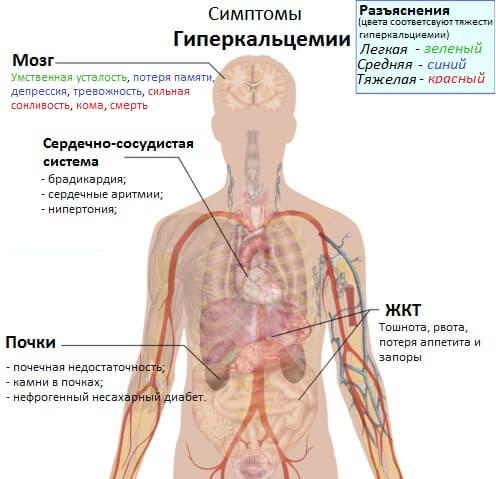 Повышенный кальций в крови - гиперкальциемия