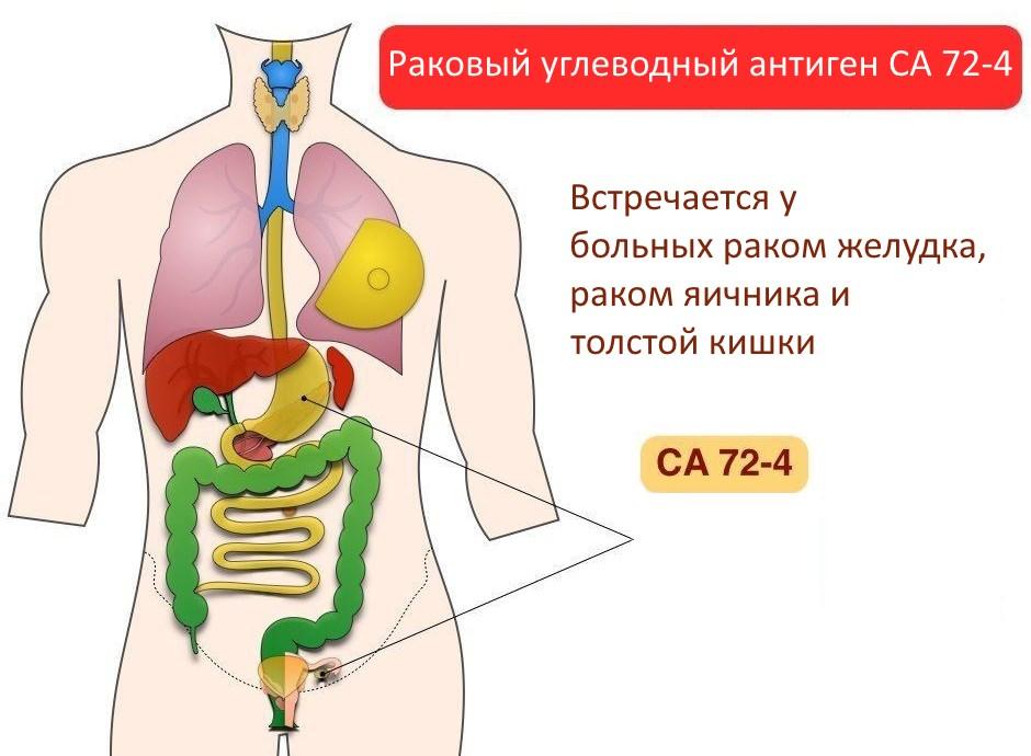 Онкомаркеры при раке желудка