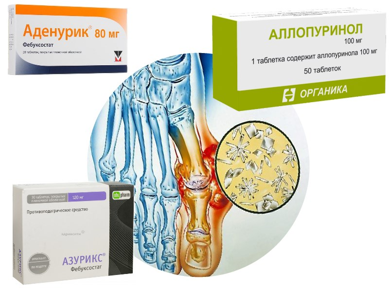 Лекарственная терапия гиперурикемии