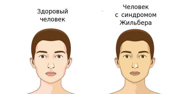 Билирубин и синдром Жильбера