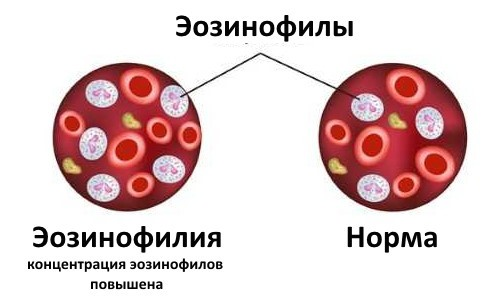 Эозинофилия у взрослых